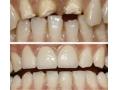 门牙缺失的补救方法