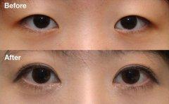 双眼皮整形前后对比图