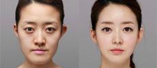 改脸型前后对比图