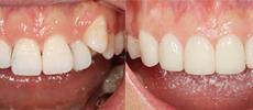 牙齿矫正前后对比图