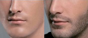胡须种植前后对比图