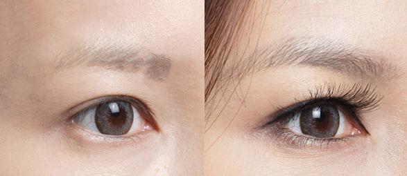眉毛种植前后对比图