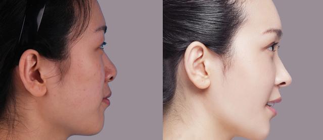 注射隆鼻前后对比图