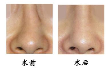 歪鼻整形手术方法和注意事项