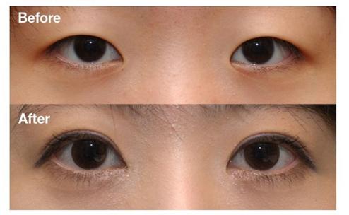 女性哺乳期可以做开眼角手术吗