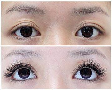眉毛移植的术后护理