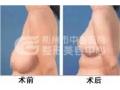 乳房下垂如何矫正呢?