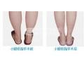 注射botox瘦小腿*可靠