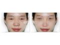 鼻头缩小术的手术方法都