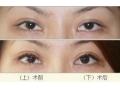 眉毛移植术前应注意什么