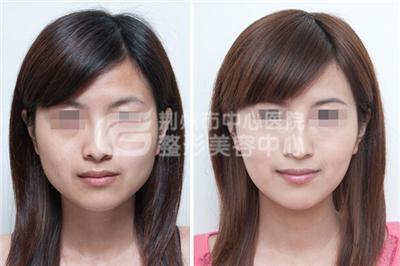 怎样使脸部变小呢?