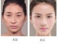 歪鼻畸形是如何形成的?