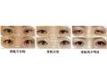 双眼皮手术失败修复的方