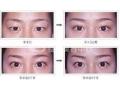 切眉术后应该注意什么?