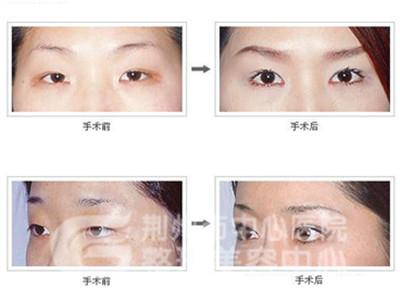 韩式双眼皮手术的优点是什么?