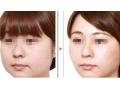 面部吸脂手术的安全性怎