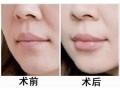 自体脂肪丰唇的原理是什