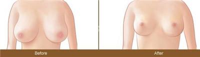 巨乳缩小手术怎么样呢?