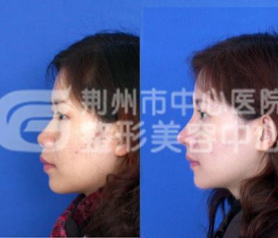 自体软骨隆鼻的效果怎么样?
