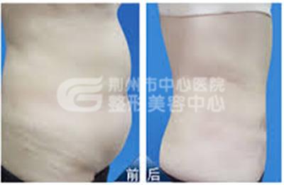 腹部吸脂应该注意哪些问题?