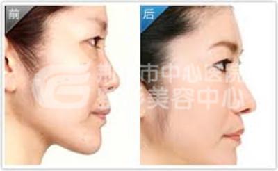 如何避免隆鼻手术后遗症呢?