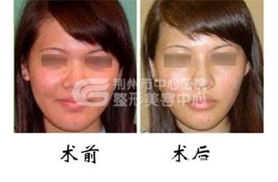 鼻翼缩小手术疤痕如何进行修复呢?