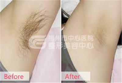 激光脱毛后是否会出现复发现象呢?