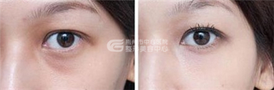 彩光嫩肤能有效治愈黑眼圈吗?