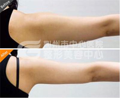 宜昌做手臂吸脂减肥要多少钱呢?