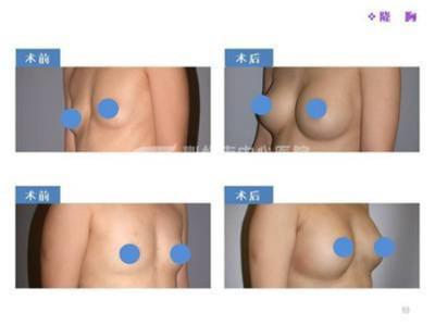 假体隆胸术后的护理有什么