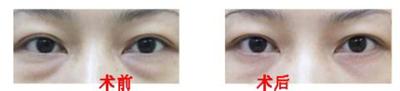 做眼袋祛除手术需要注意哪些问题?