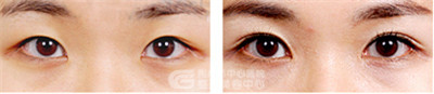 怎样预防埋线双眼皮术后出现淤血?