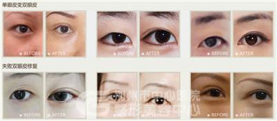 埋线双眼皮手术适合哪些人做?