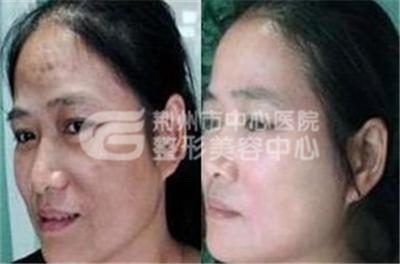 脸上黄褐斑的治疗方法有哪些?