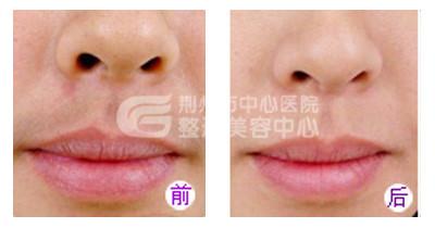 宜昌激光脱唇毛的价格是多少?