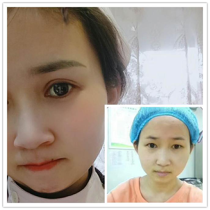 分享荆州真人做切开双眼皮过程及一个月对比图