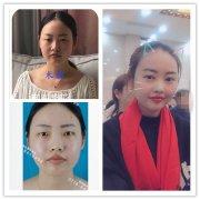 【双眼皮整形日记】分享荆州双眼皮七天快速恢复案例图