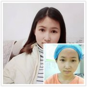 【真人案例】分享荆州医院导诊做切开双眼皮前后护理总结